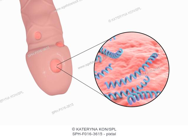 Syphilis ulcer on penis and close-up view of syphilis bacteria (Treponema pallidum), computer illustration